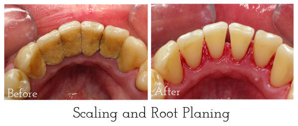 Scaling and root planing